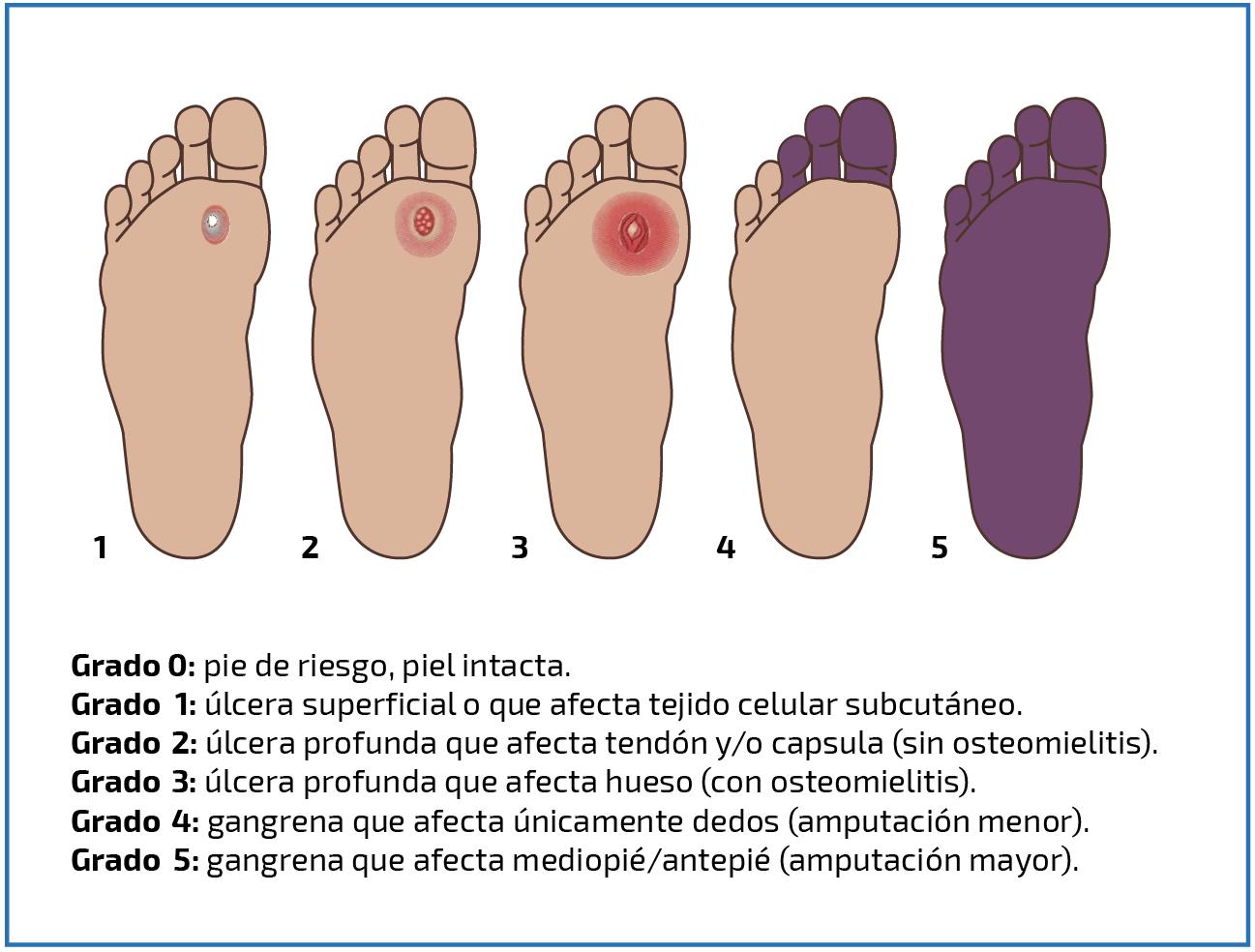 Resultado de imagen para ulceras neuropaticas